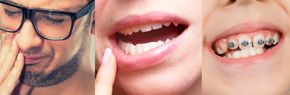 Afte Dentali